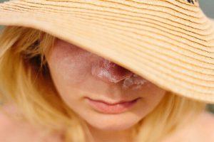 紫外線を気にする女性